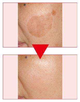 美容皮膚科 | シミ、シワ、ニキビ、永久脱毛、ピーリング、ピアス穴あけについてのイメージ